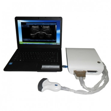 Enhanced 3D Portable Ultrasound Equipment MSLPU15
