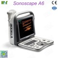 Sonoscape ultrasound sonoscape a6 price: ultrasound machine