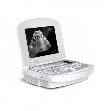 Comprehensive Use Portable & Laptop Ultrasound Machine MSLPU28
