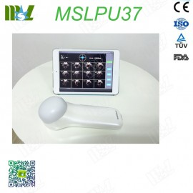 4D Wireless Probe Bladder Ultrasound Scanner MSLPU37 price
