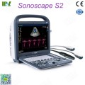 Factory direct sales ecografo sonoscape s2 price list