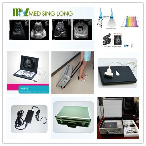 Best portable laptop ultrasound scanner